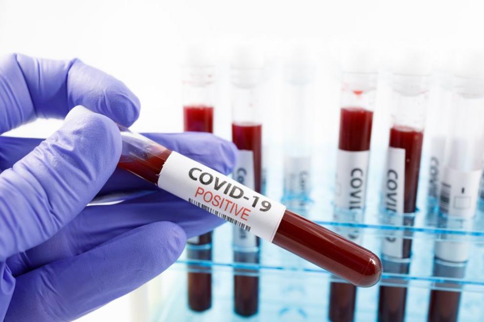 991-ratio-koronavirus-proba-pcr-test
